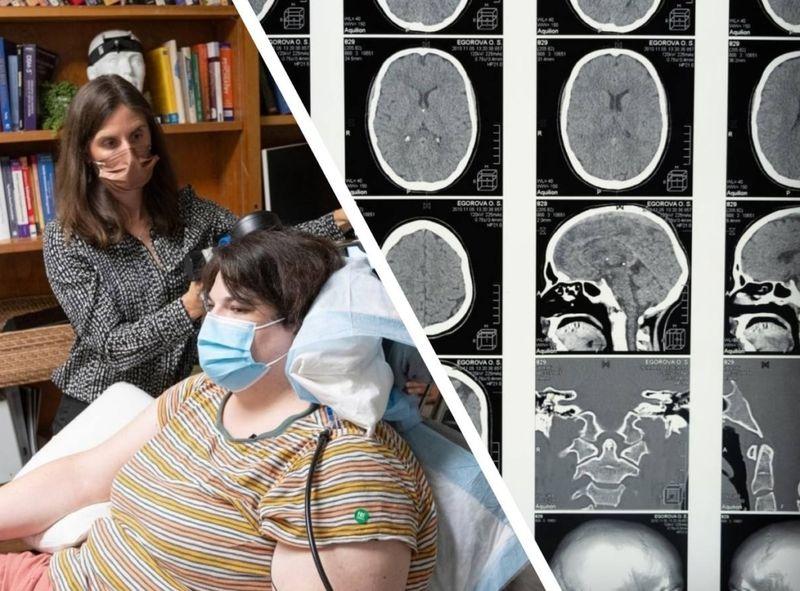 Вживлённые в мозг электроды  подавили симптомы депрессии у 36-летней пациентки